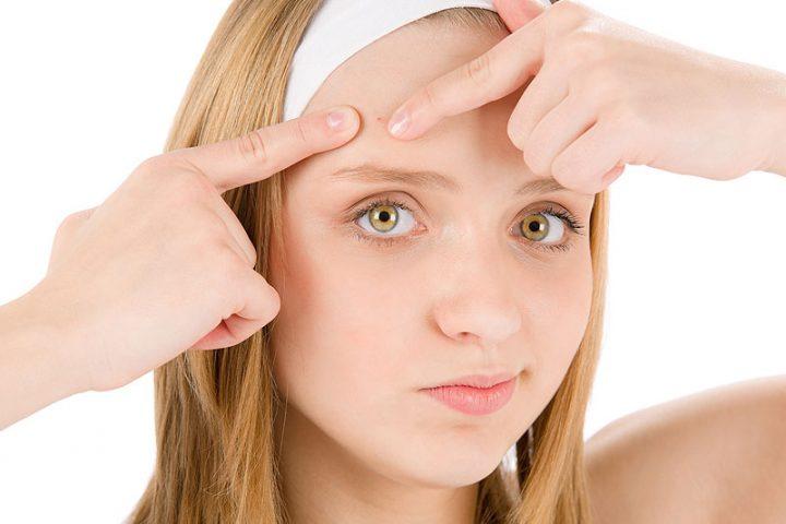 espremer-acne