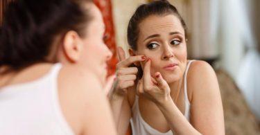 Tratamento contra acne
