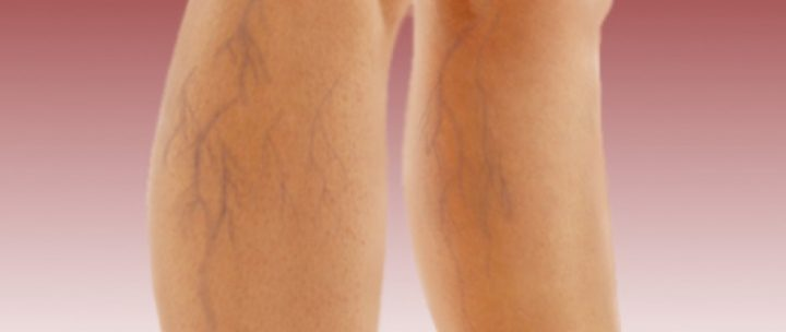 varizes-nas-pernas
