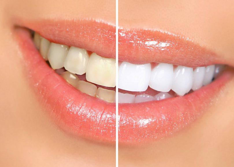 Clareamento Dental Conheca Os Tipos E Resultados