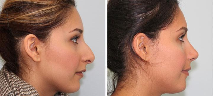 Cirurgia de nariz antes e depois