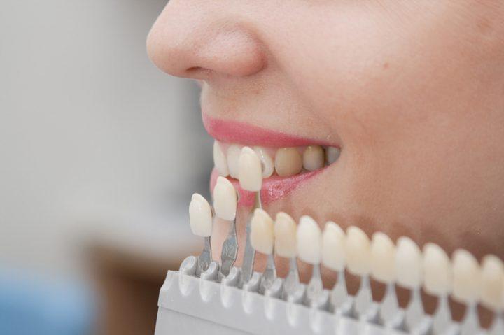 lentes-de-contato-para-os-dentes