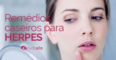 Remédios caseiros para herpes