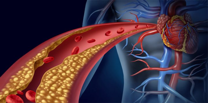 tipos de colesterol ldl hdl