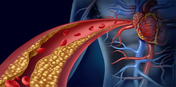 Resultado de imagem para colesterol