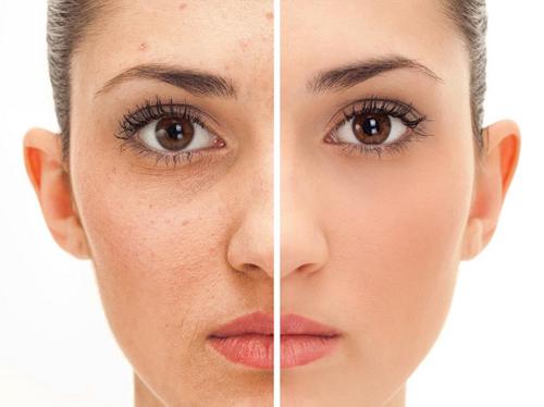 rosto-acne-naruna