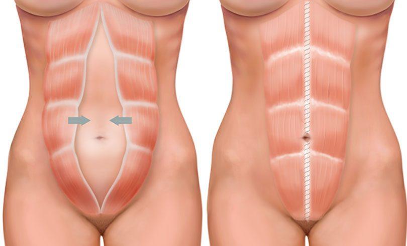 Distensão abdominal