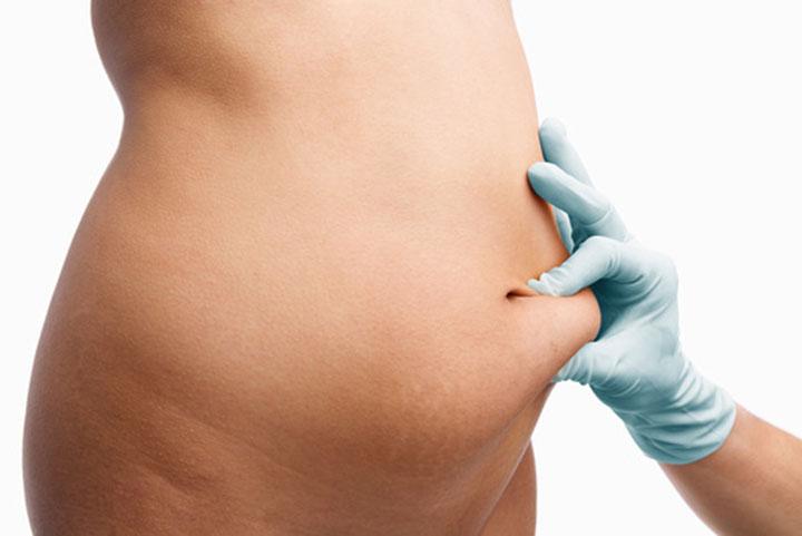 Distensão abdominal causas