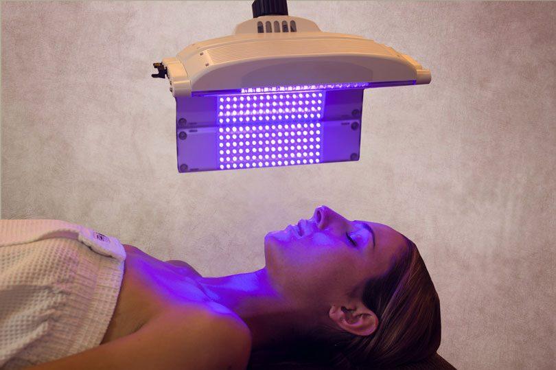 Terapia fotodinamica para acne
