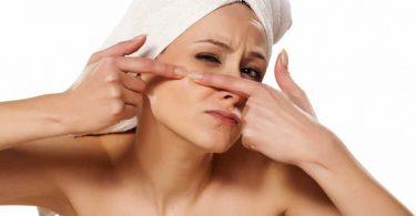 Vitaminas para acne