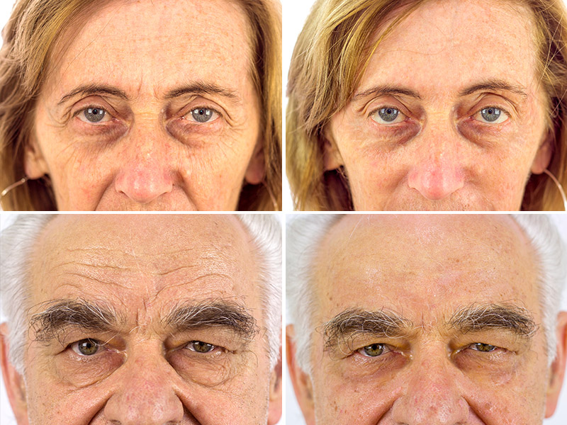 Dermaglass antes e depois