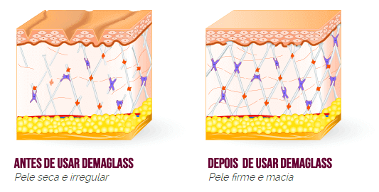 Dermaglass resultados