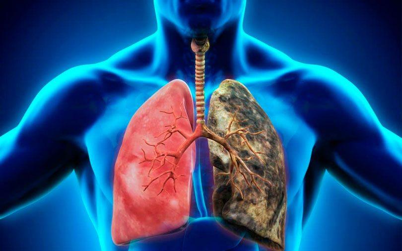 Muitas vezes Câncer de pulmão: conheça mais e saiba como prevenir - Tudo Ela DY02