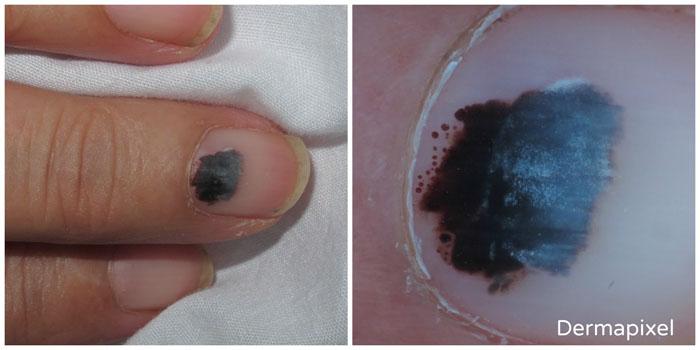 Como tratar unha roxa? Conheça o hematoma subungueal!