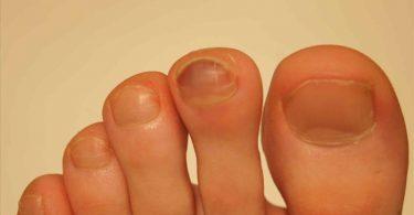 Doenças de unhas