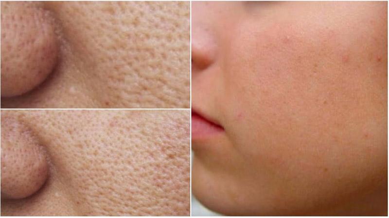 4017e155734fd Quer saber como tratar poros abertos, também conhecidos como poros  dilatados e que incomoda tanto as mulheres na hora de se maquiar