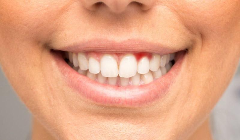 Resultado de imagem para periodontite