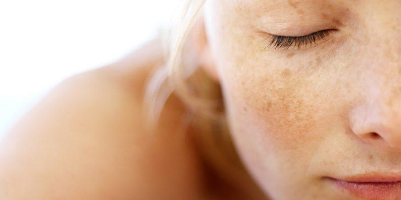 d7a8496781012 Você conhece remédios para manchas na pele  Talvez você não seja desse  grande grupo de mulheres que tem manchas escuras na pele. Mas se você  pertence a esse ...