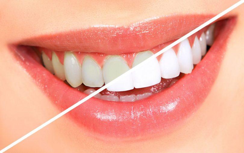 Clareamento Dental Caseiro Funciona Quais Os Riscos Tudo Ela